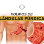 O que são pólipos de glândulas fúndicas? Como prevenir e tratar?